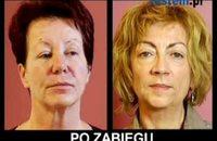 Dermatologia estetyczna