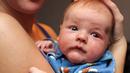 Atopowe zapalenie skóry u dzieci - przyczyny